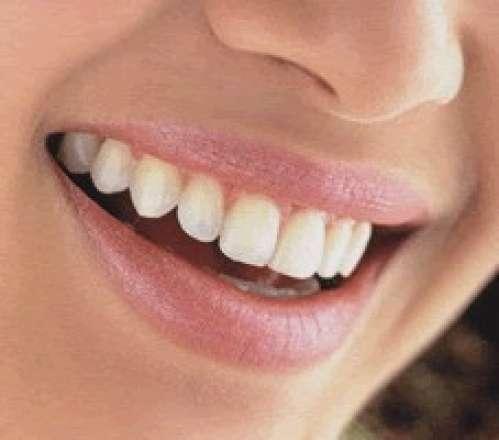 Odontologia - protesis dentales
