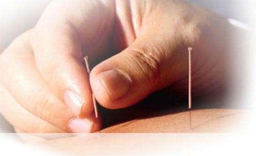 Acupuntura - dolores musculares y articulares
