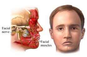 Kinesiología, tratamiento y rehabilitación de la parálisis facial. kinesiólogo uba