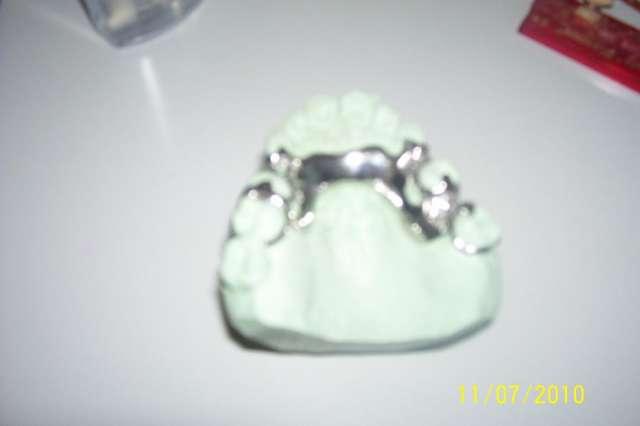 Laboratorio dental protesis completas y parciales