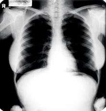 Compro radiografías. reciclamos plásticos.