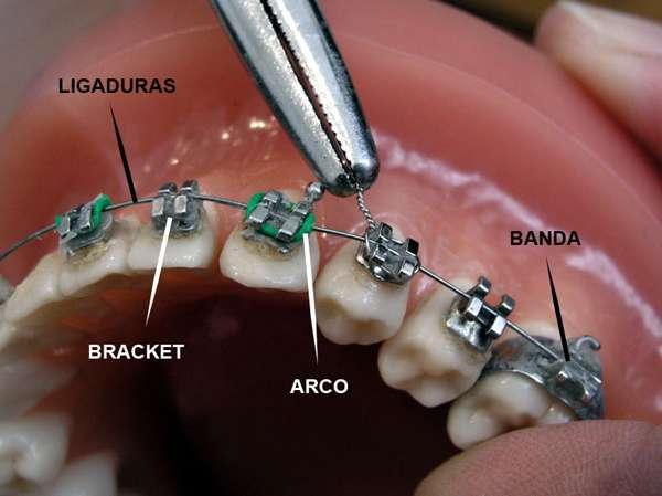 Tipos y marcas de brackets: ventajas y desvantajas al elegir tratamiento de ortodoncia