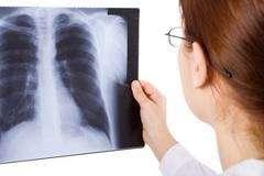 Abymet compra de metales no ferrosos en gral , compramos placas radiografias usadas o nuevas