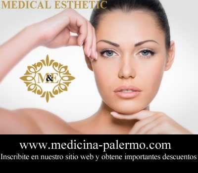 Mesolifting estética medicina palermo