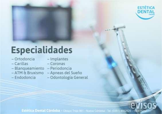 Odontología por obras sociales - estética dental córdoba