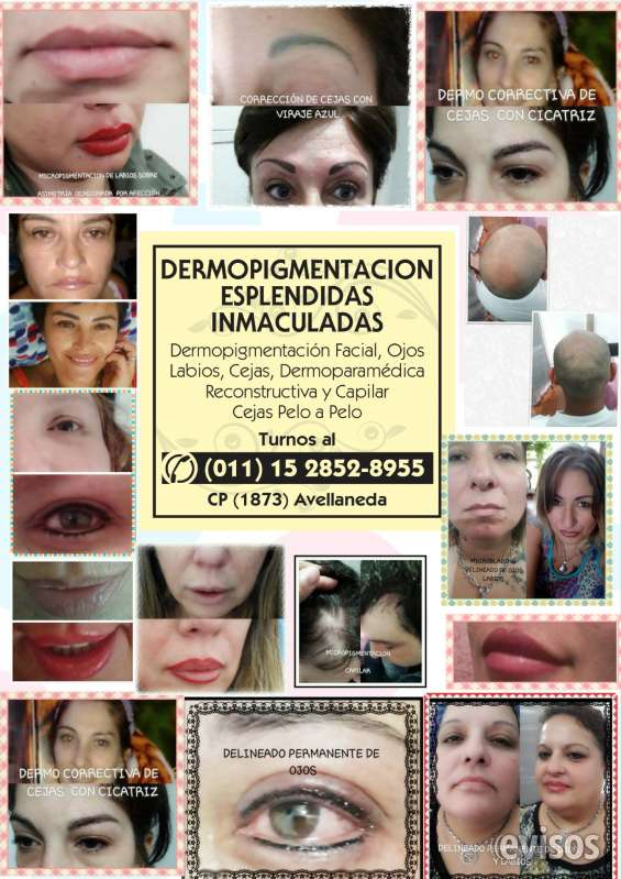 Dermopigmentacion en zona sur