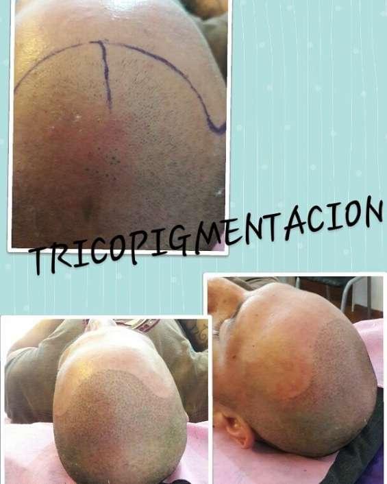 Dermopigmentacion capilar, adiós calvicie
