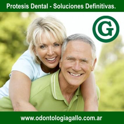 Centro odontologico gallo, odontologia integral, implantes