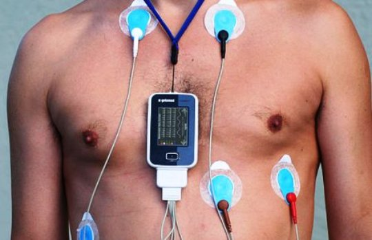 Holter 24 hs.