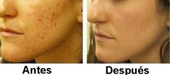 Peeling facial salon carolinas! descuentos!!!!!!!!!!!!