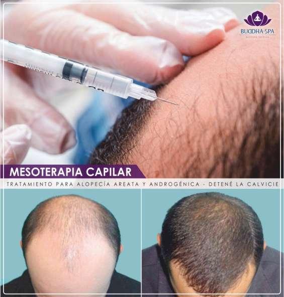 Mesoterapia capilar en salta capital